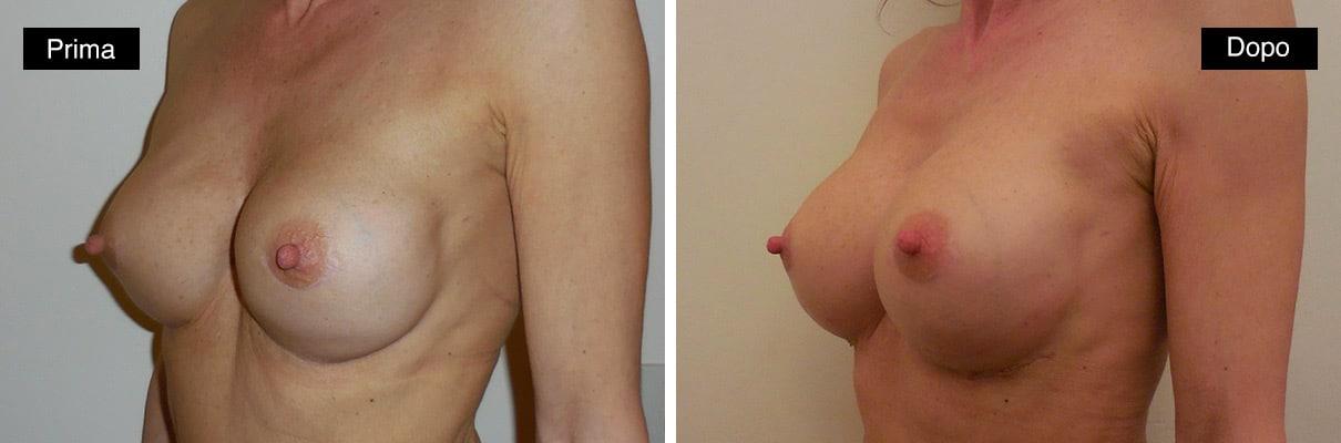 Mastoplastica additiva sostituzione protesi