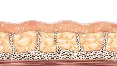 lifting non chirurgico Ultherapy