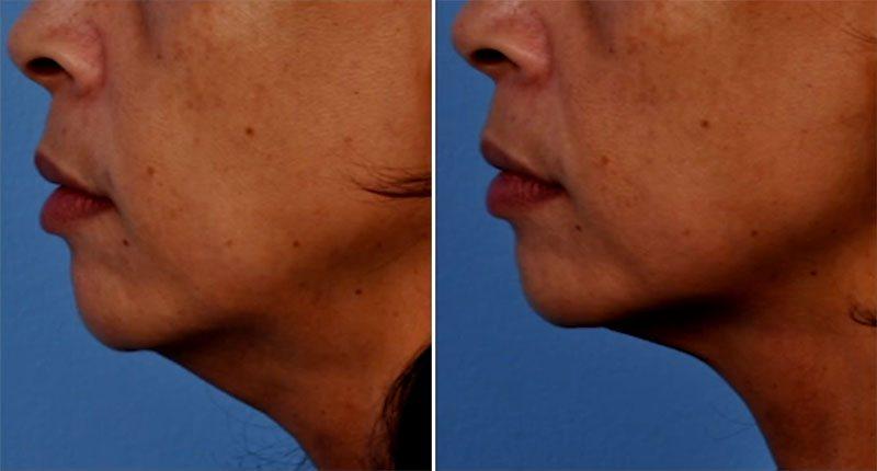 ultherapy prima e dopo donna